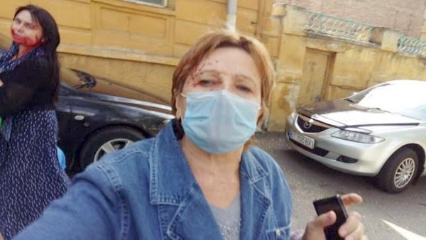 Краска попала и налицо матери Татьяны Кузьмич