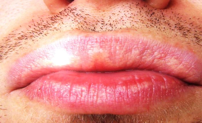 Сало на губах